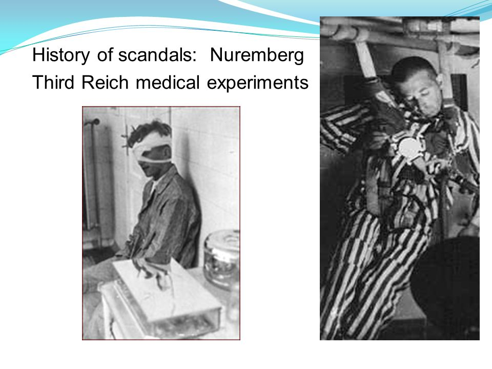 History of scandals: Nuremberg Third Reich medical experiments