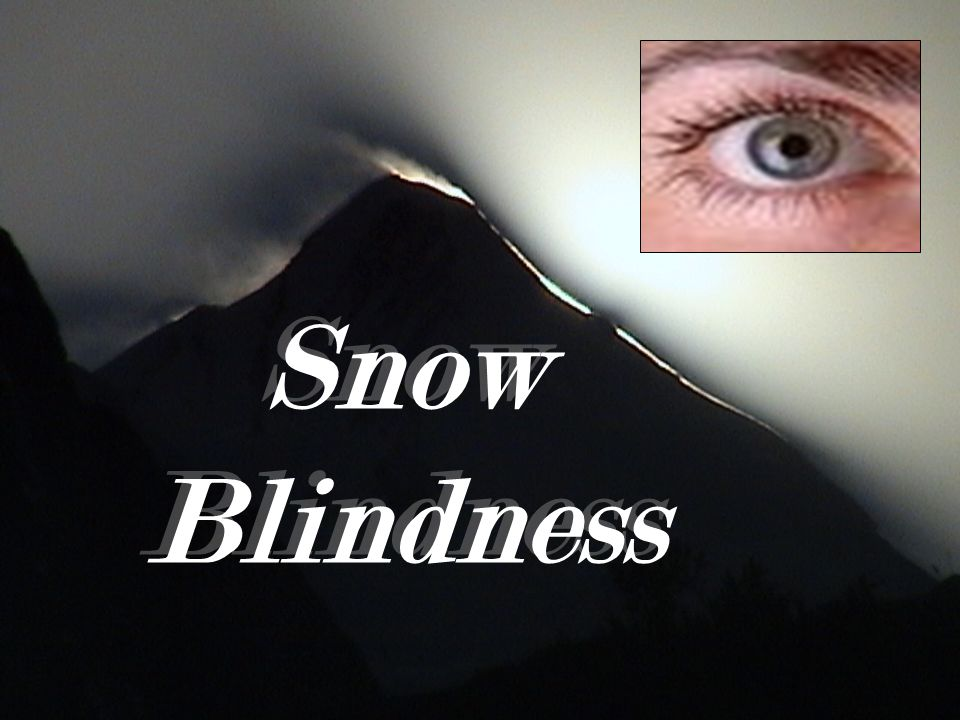 5fc034ff57 Snow Blindness. Exposure to ultraviolet radiation (UVR) from the sun ...