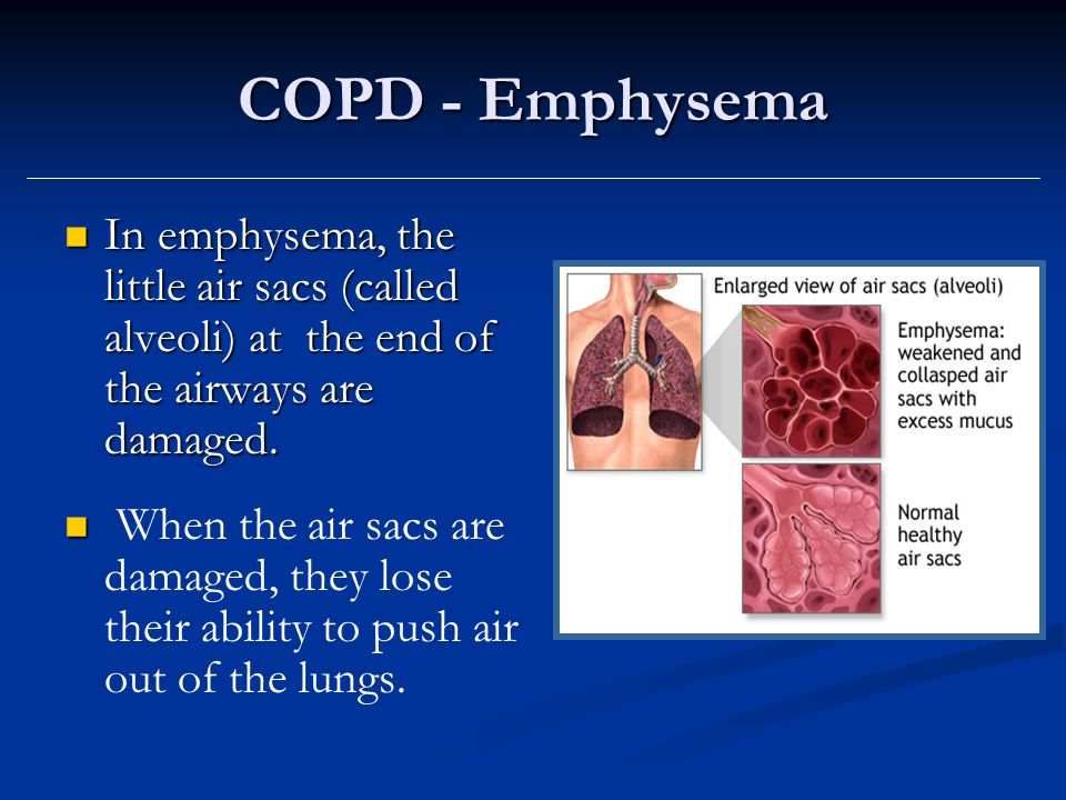 COPD - Emphysema In emphysema, the little air sacs (called alveoli) at the end of the airways are damaged.