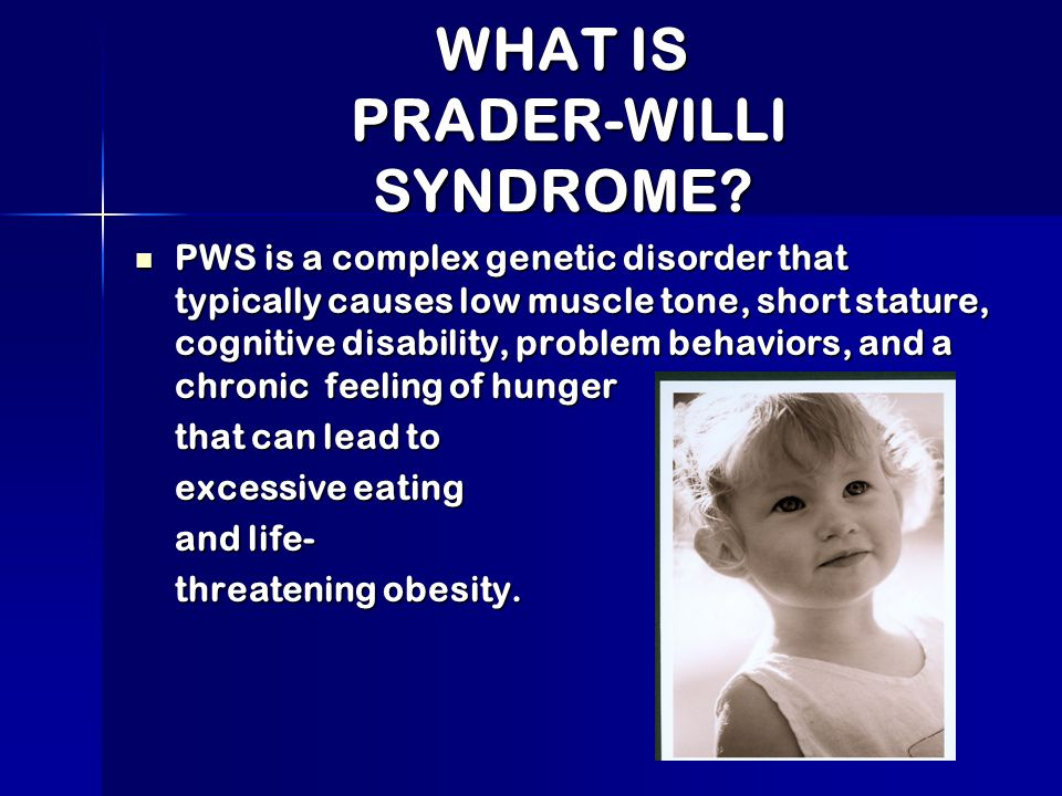 living with prader willi syndrome what is prader willi syndrome