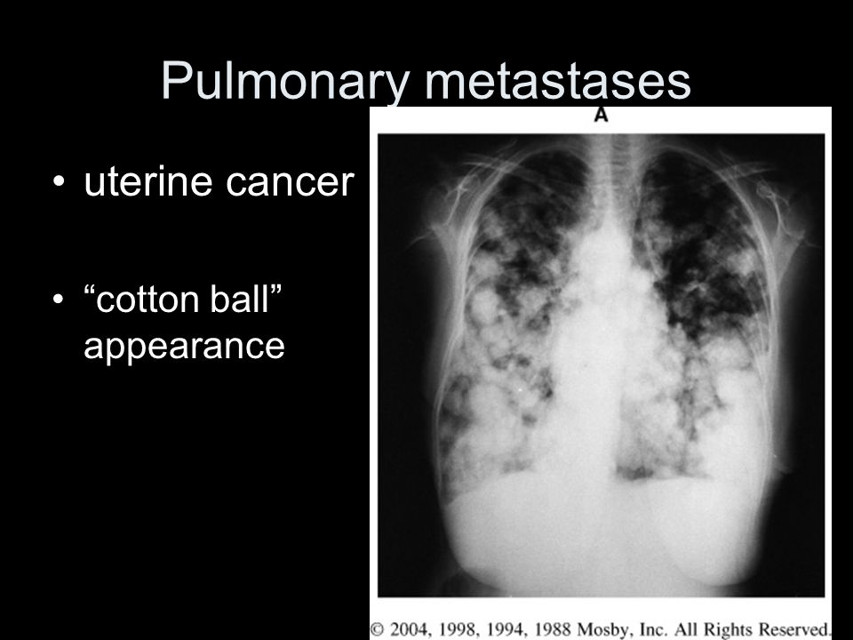 Pulmonary metastases uterine cancer cotton ball appearance