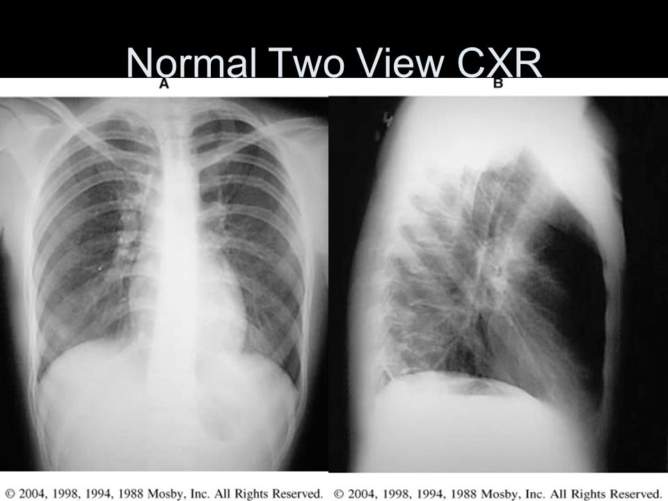 Normal Two View CXR