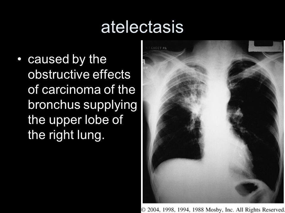 atelectasis caused by the obstructive effects of carcinoma of the bronchus supplying the upper lobe of the right lung.