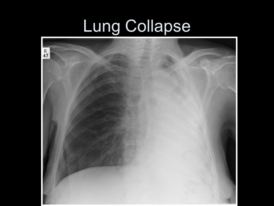 Lung Collapse