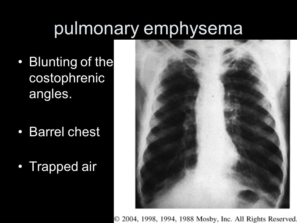 pulmonary emphysema Blunting of the costophrenic angles. Barrel chest Trapped air
