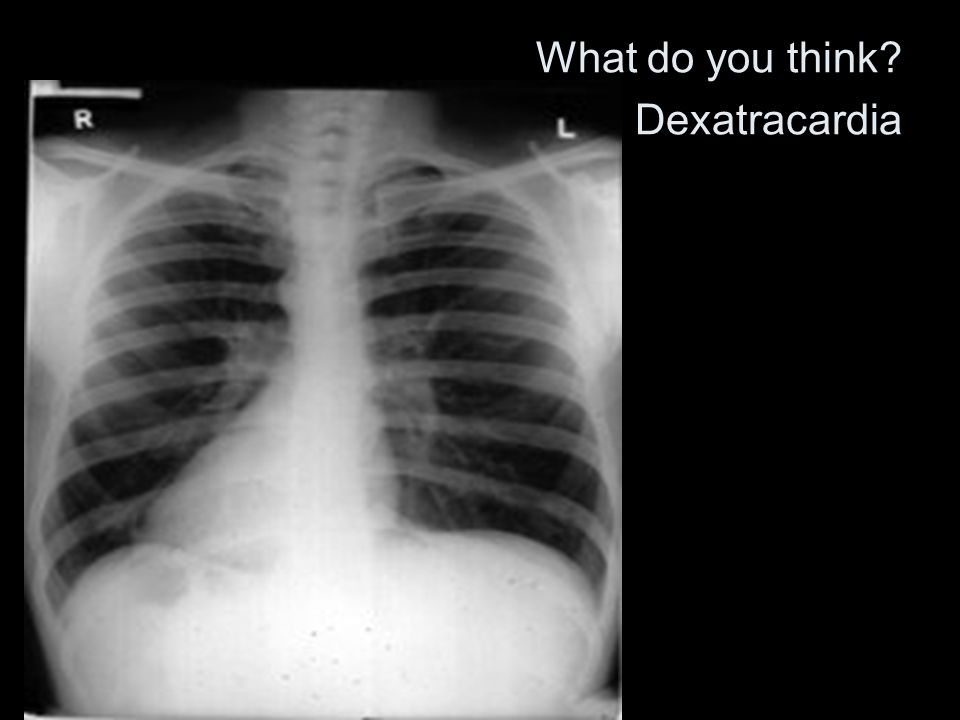 What do you think Dexatracardia
