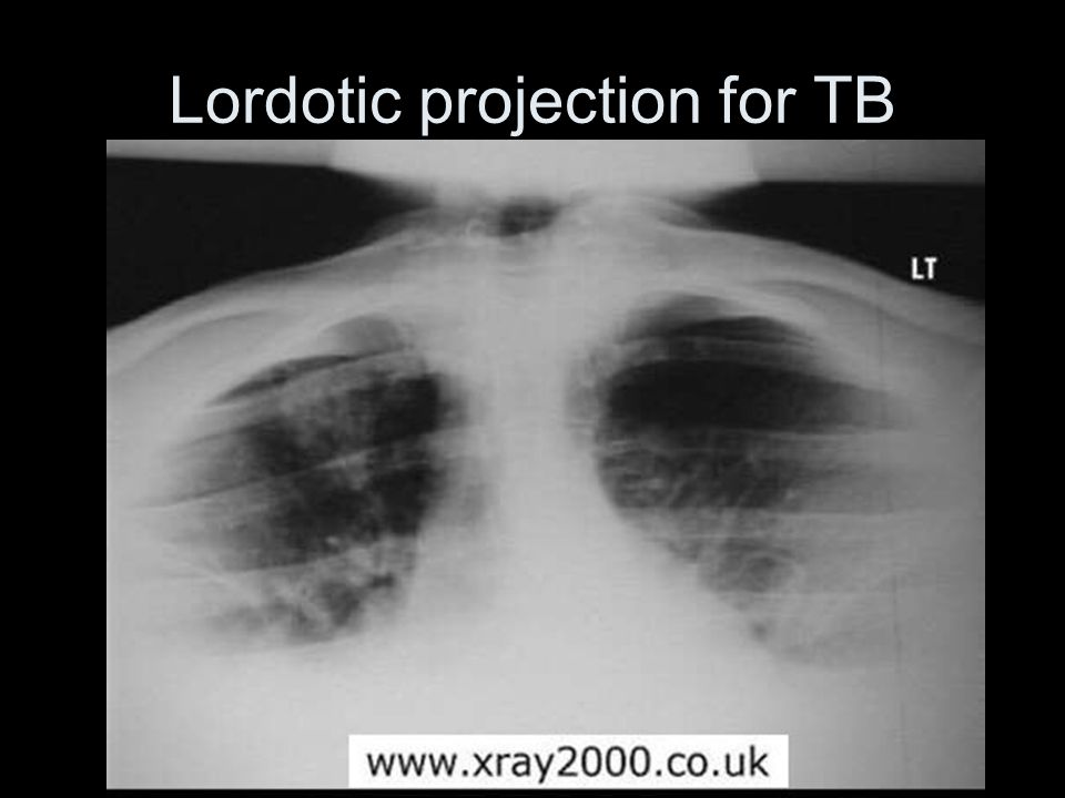 Lordotic projection for TB