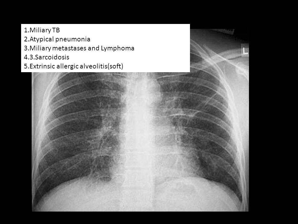 1.Miliary TB 2.Atypical pneumonia 3.Miliary metastases and Lymphoma 4.3.Sarcoidosis 5.Extrinsic allergic alveolitis(soft)