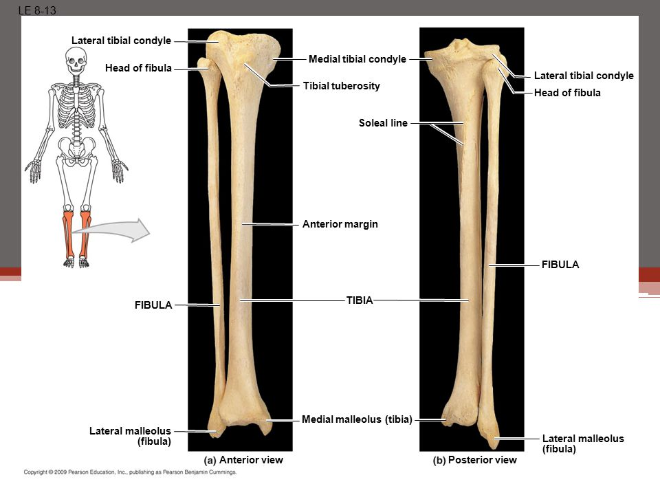LE 8-13 Posterior viewAnterior view Lateral tibial condyle Head of fibula Medial tibial condyle Tibial tuberosity Soleal line Anterior margin Lateral tibial condyle Head of fibula Lateral malleolus (fibula) Medial malleolus (tibia) Lateral malleolus (fibula) FIBULA TIBIA