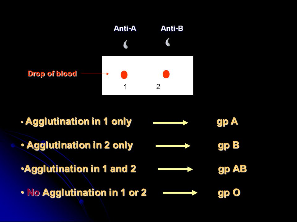 Anti-AAnti-B Drop of blood Agglutination in 1 only gp A Agglutination in 1 only gp A Agglutination in 2 only gp B Agglutination in 2 only gp B Agglutination in 1 and 2 gp ABAgglutination in 1 and 2 gp AB No Agglutination in 1 or 2 gp O No Agglutination in 1 or 2 gp O 12