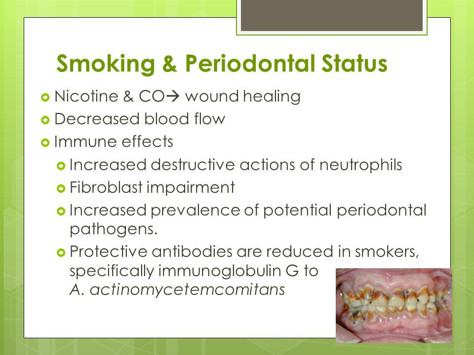 Oral Health and Tobacco Use Presented by: Laura Romito, DDS, MS