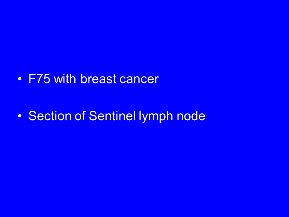 F75 with breast cancer Section of Sentinel lymph node