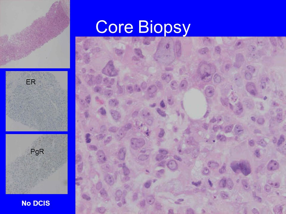 Core Biopsy PgR ER No DCIS