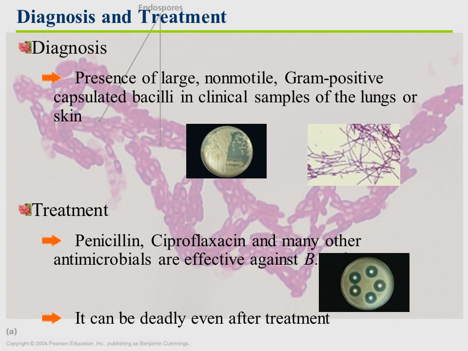 Diagnosis Presence of large, nonmotile, Gram-positive capsulated bacilli in clinical samples of the lungs or skin Treatment Penicillin, Ciproflaxacin and many other antimicrobials are effective against B.anthracis It can be deadly even after treatment Diagnosis and Treatment