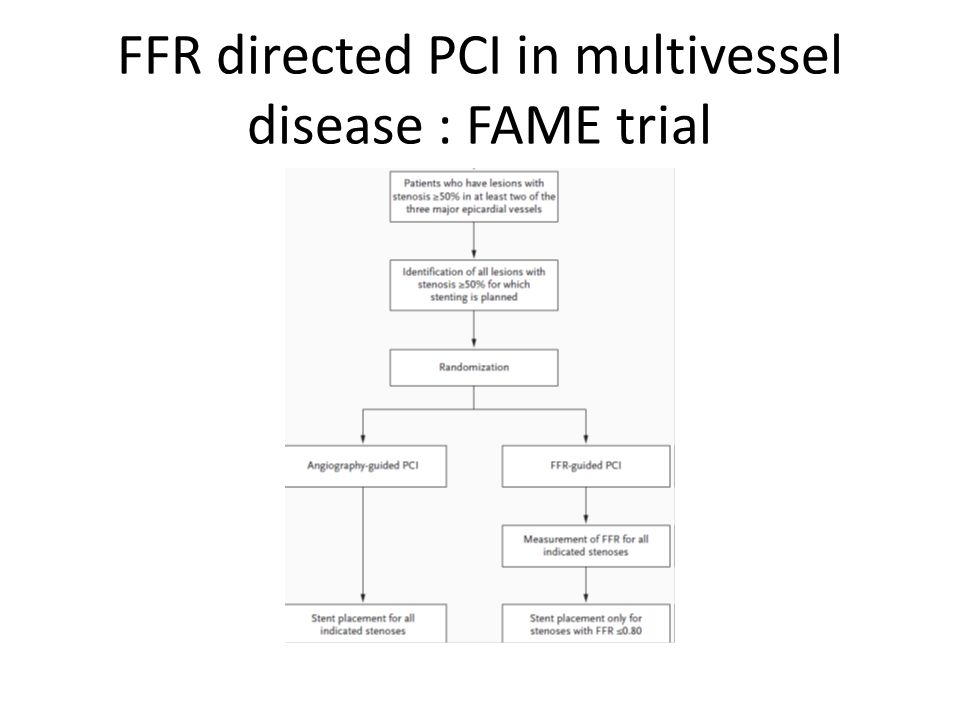 FFR directed PCI in multivessel disease : FAME trial