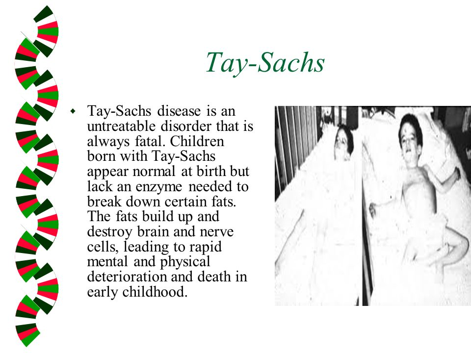 Tay-Sachs w Tay-Sachs disease is an untreatable disorder that is always fatal.