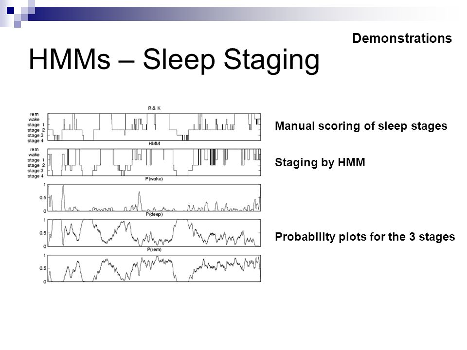 HMMs – Sleep Staging Probability plots for the 3 stages Staging by HMM Manual scoring of sleep stages Demonstrations