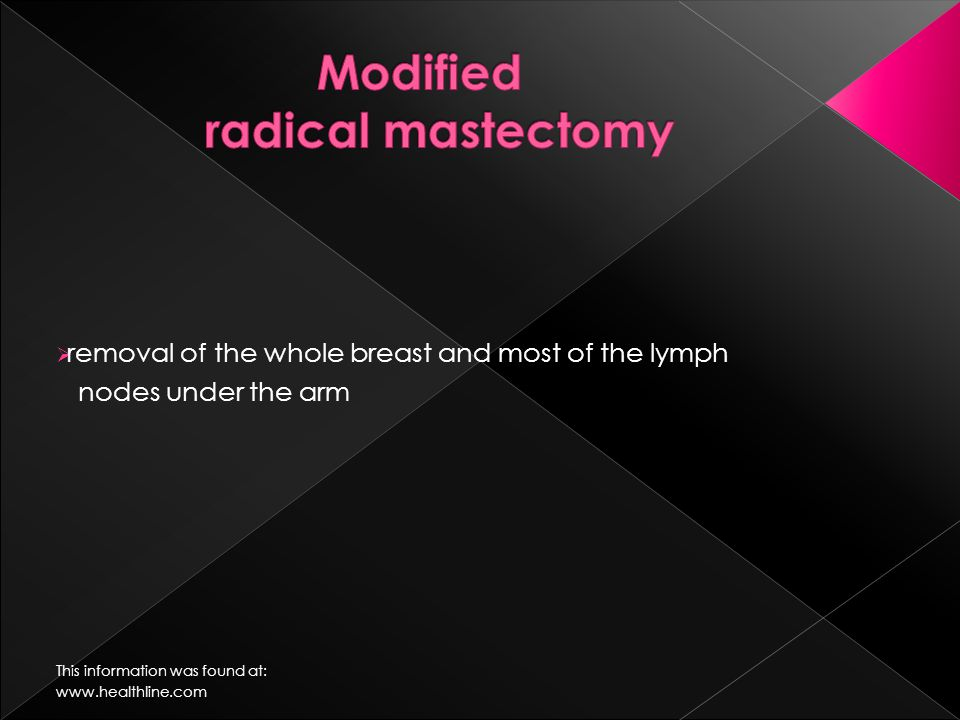  removal of the whole breast and most of the lymph nodes under the arm This information was found at: