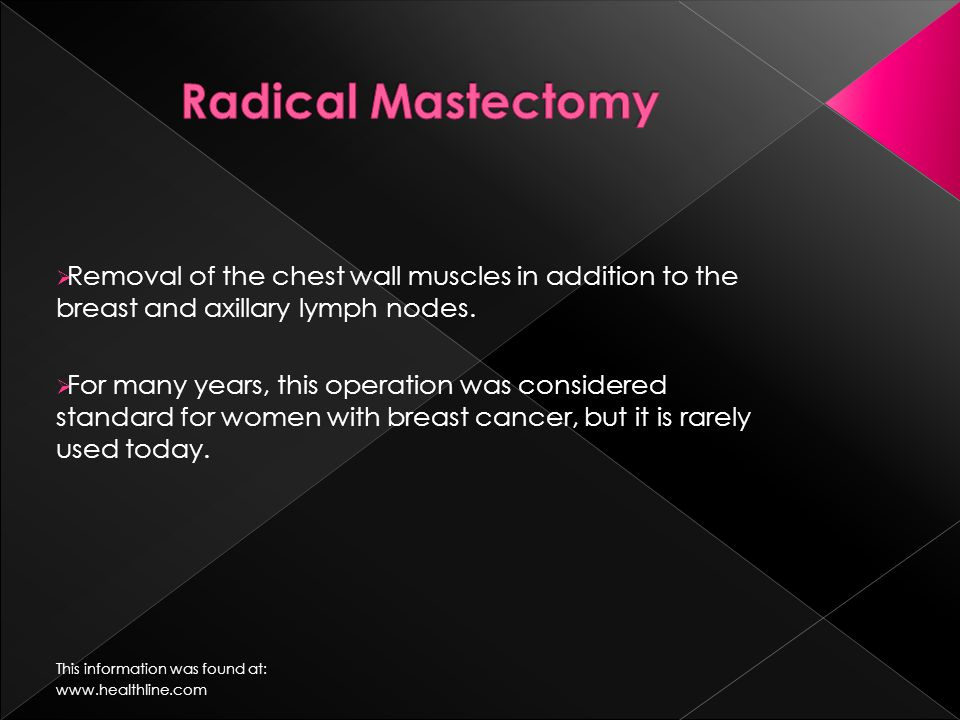  Removal of the chest wall muscles in addition to the breast and axillary lymph nodes.