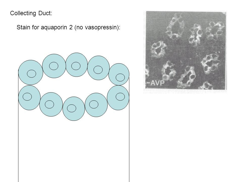 Stain for aquaporin 2 (no vasopressin): Collecting Duct: