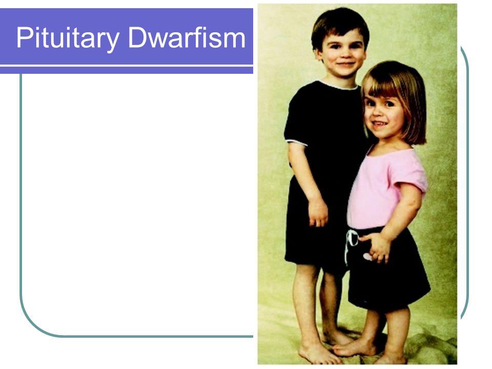 9 pituitary dwarfism