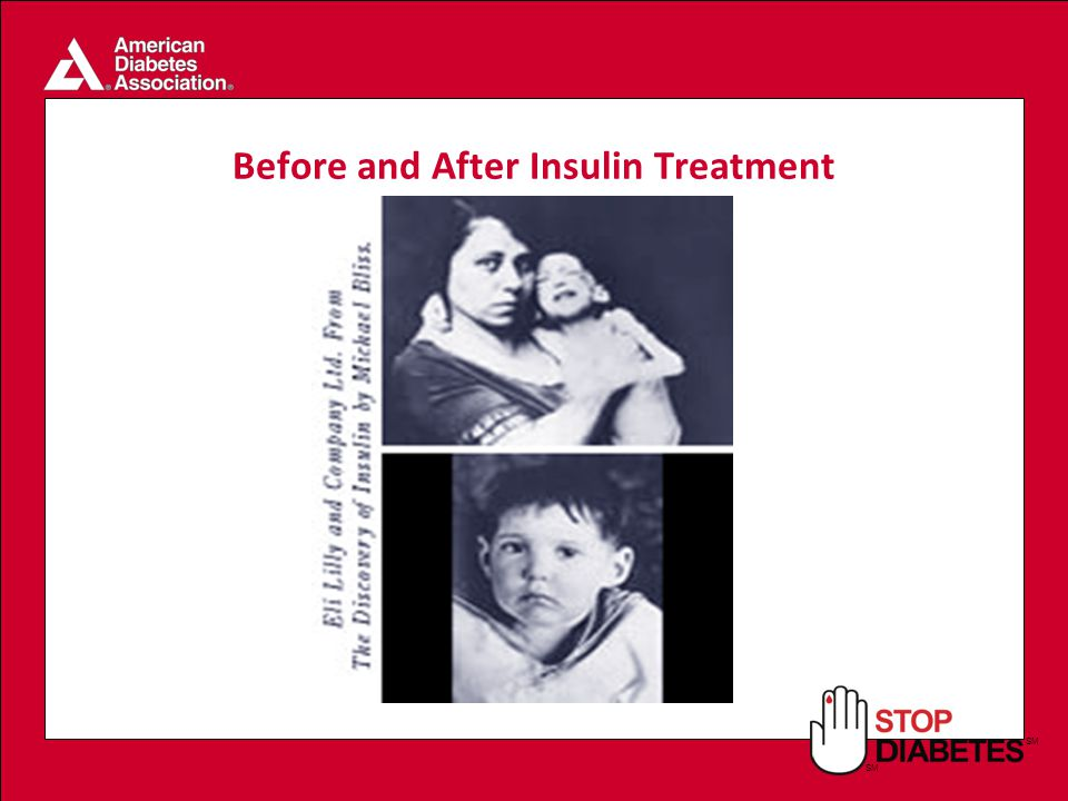 SM Before and After Insulin Treatment