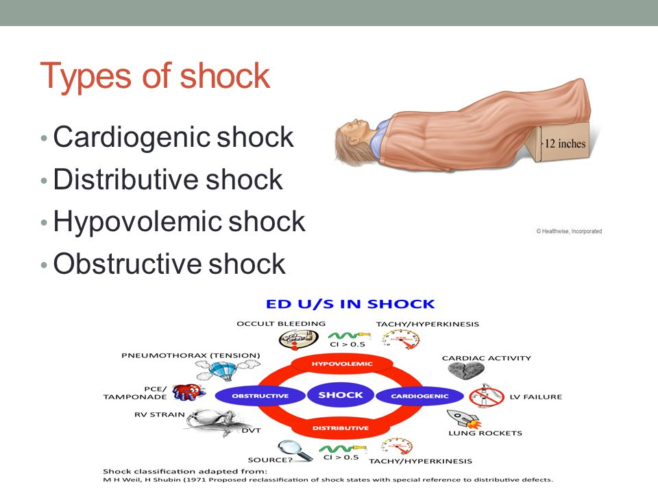 Types of shock Cardiogenic shock Distributive shock Hypovolemic shock Obstructive shock