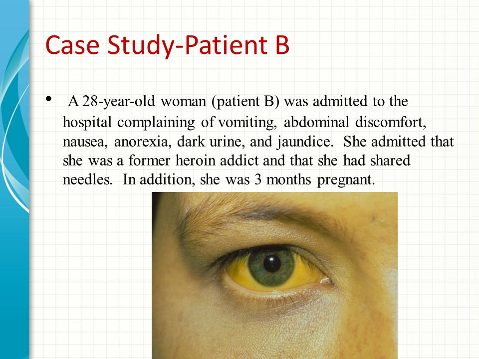 Case Study-Patient B A 28-year-old woman (patient B) was admitted to the hospital complaining of vomiting, abdominal discomfort, nausea, anorexia, dark urine, and jaundice.