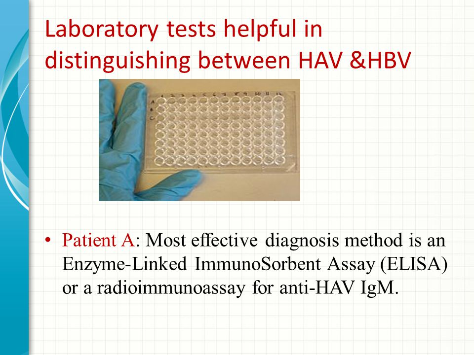 Laboratory tests helpful in distinguishing between HAV &HBV Patient A: Most effective diagnosis method is an Enzyme-Linked ImmunoSorbent Assay (ELISA) or a radioimmunoassay for anti-HAV IgM.