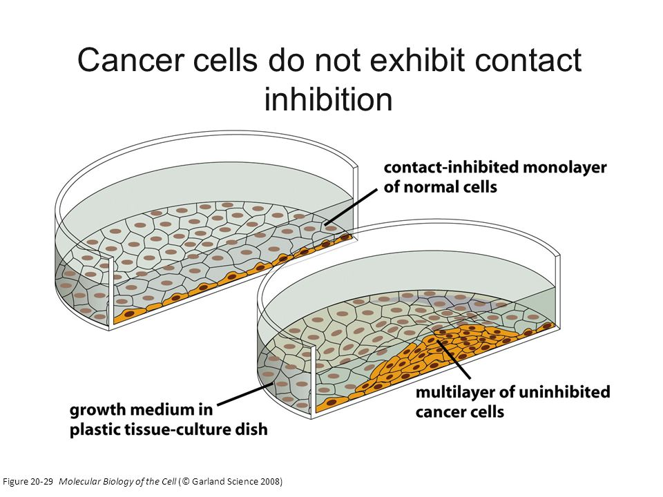 Figure Molecular Biology of the Cell (© Garland Science 2008) Cancer cells do not exhibit contact inhibition