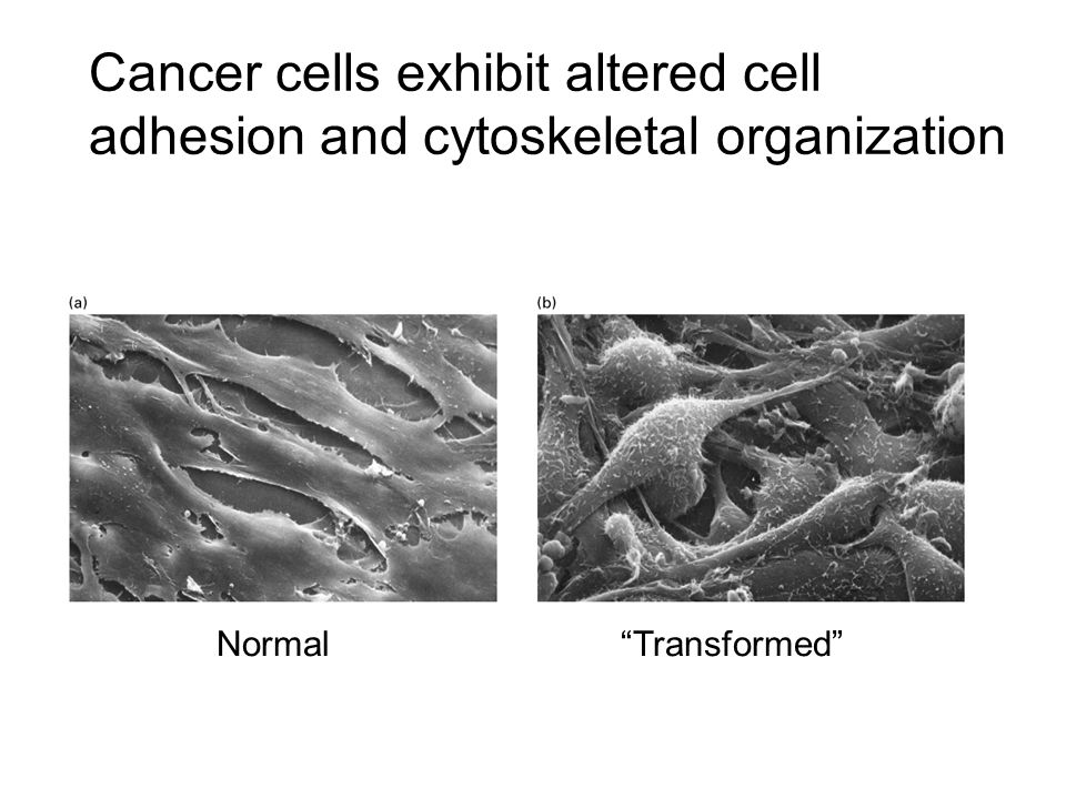 Normal Transformed Cancer cells exhibit altered cell adhesion and cytoskeletal organization