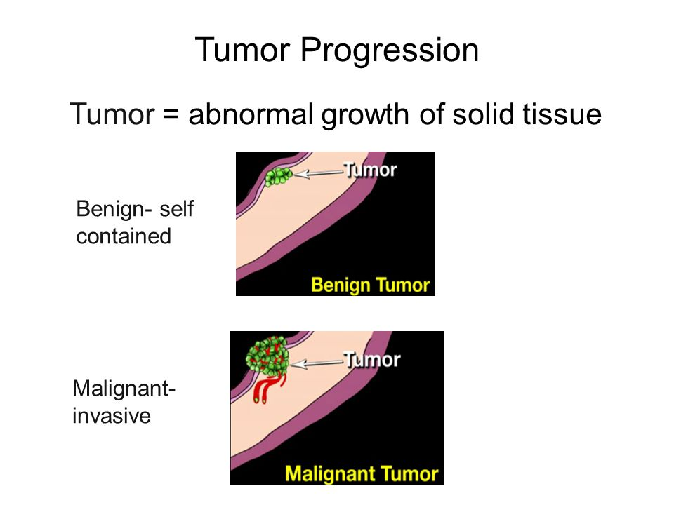 Tumor Progression Tumor = abnormal growth of solid tissue Benign- self contained Malignant- invasive