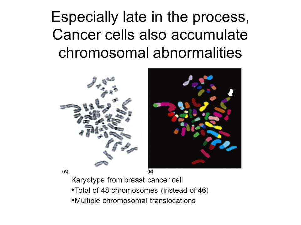 Especially late in the process, Cancer cells also accumulate chromosomal abnormalities Karyotype from breast cancer cell Total of 48 chromosomes (instead of 46) Multiple chromosomal translocations