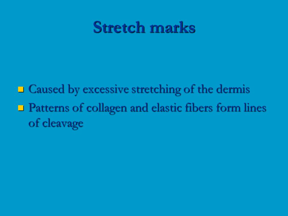 Caused by excessive stretching of the dermis Caused by excessive stretching of the dermis Patterns of collagen and elastic fibers form lines of cleavage Patterns of collagen and elastic fibers form lines of cleavage Stretch marks