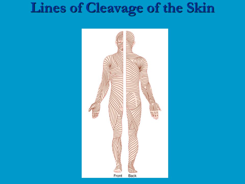 Lines of Cleavage of the Skin