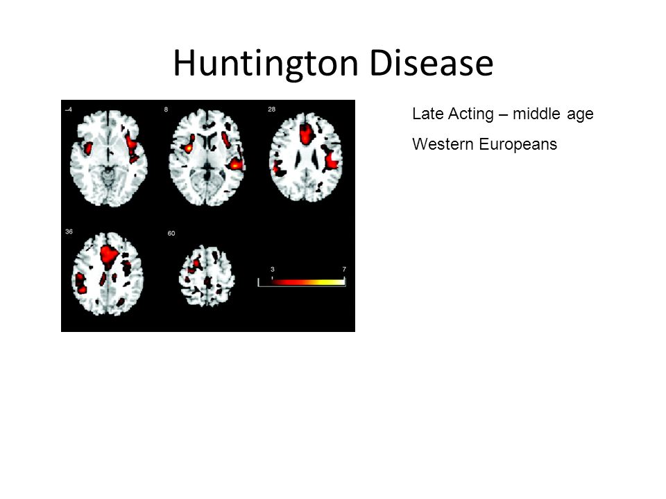 Huntington Disease Late Acting – middle age Western Europeans