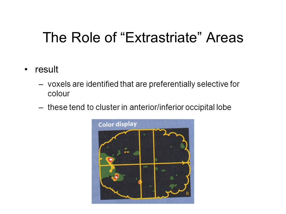 The Role of Extrastriate Areas result –voxels are identified that are preferentially selective for colour –these tend to cluster in anterior/inferior occipital lobe
