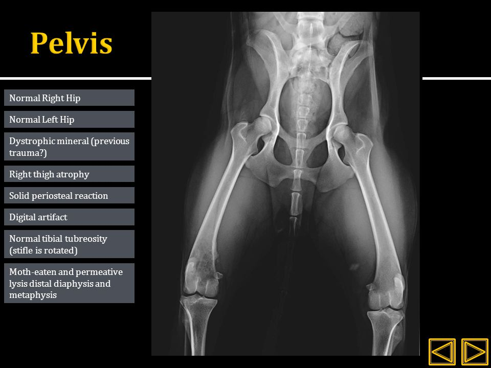 Normal Right Hip Dystrophic mineral (previous trauma ) Right thigh atrophy Solid periosteal reaction Moth-eaten and permeative lysis distal diaphysis and metaphysis Normal tibial tubreosity (stifle is rotated) Normal Left Hip Digital artifact