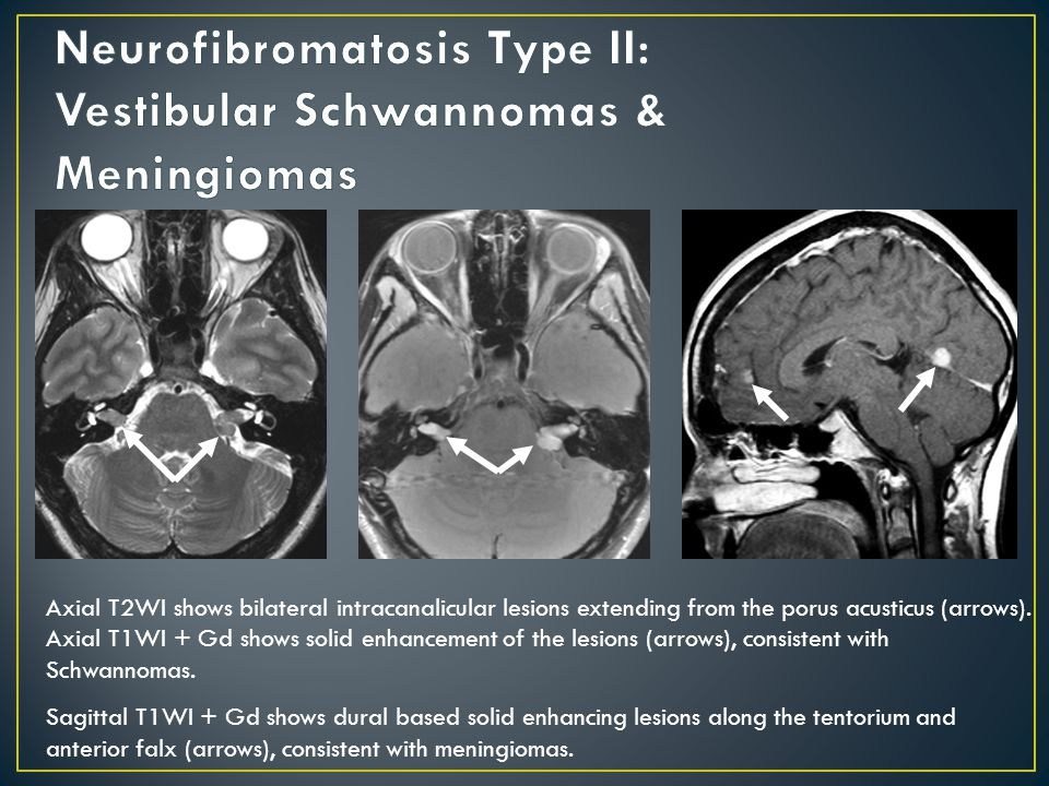 Axial T2WI shows bilateral intracanalicular lesions extending from the porus acusticus (arrows).