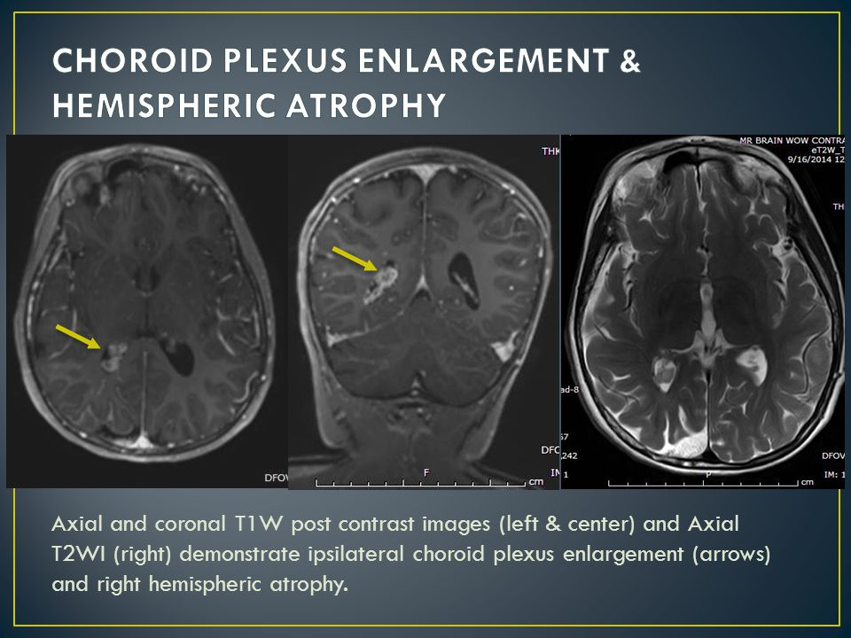 Axial and coronal T1W post contrast images (left & center) and Axial T2WI (right) demonstrate ipsilateral choroid plexus enlargement (arrows) and right hemispheric atrophy.