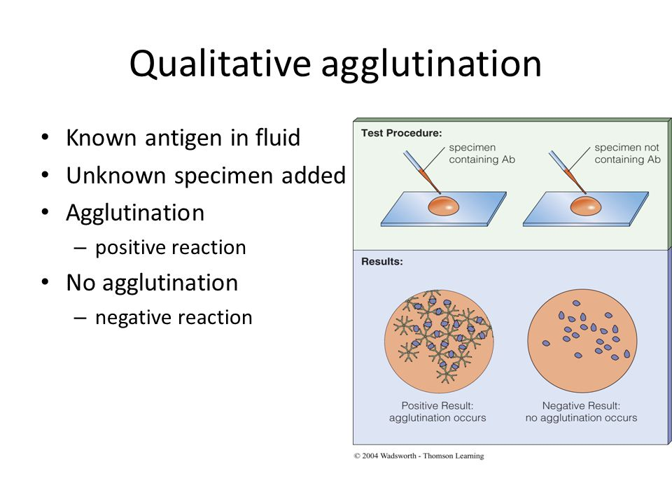 © 2004 Wadsworth – Thomson Learning Qualitative agglutination Known antigen in fluid Unknown specimen added Agglutination – positive reaction No agglutination – negative reaction