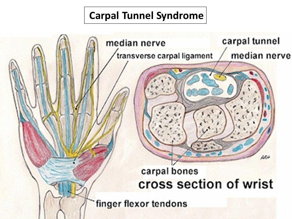 Carpal Tunnel Syndrome Carpal Tunnel Syndrome Ghada Almeshali