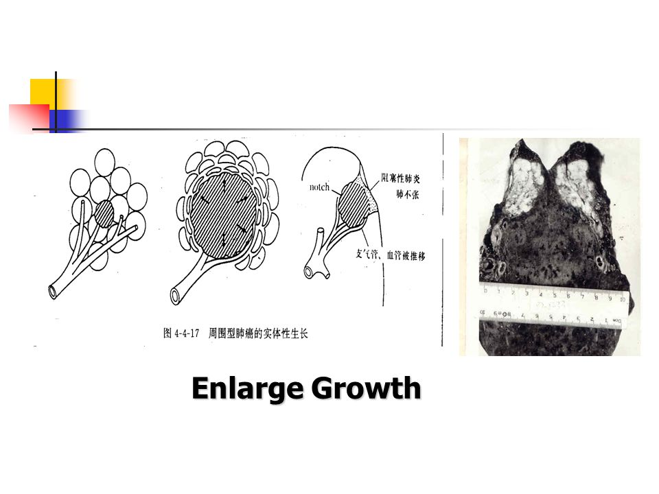Inner Growth Gross Histology