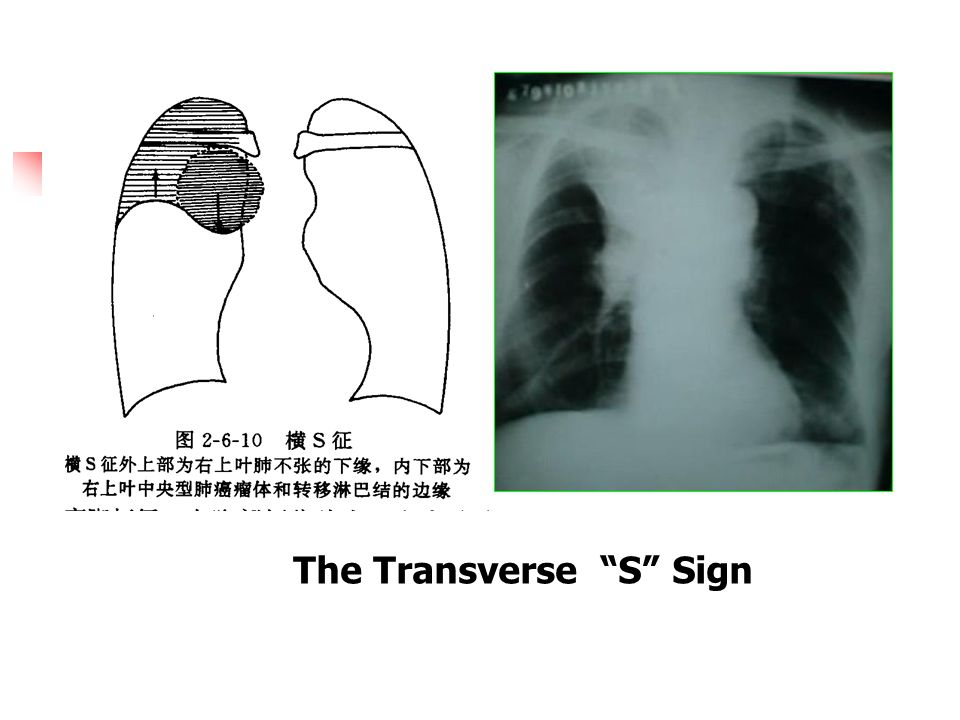 Central Type of lung Cancer Transverse s sign: The typical sign of lung cancer of right upper lobe.