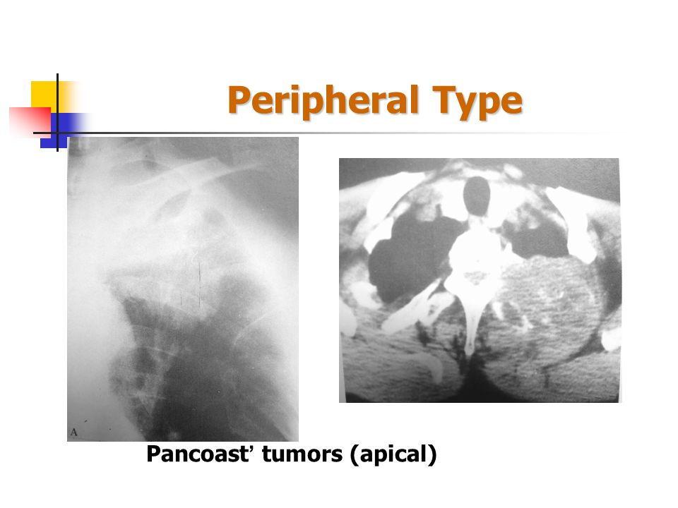 Peripheral Type: CT Scan spiculated 3D CT