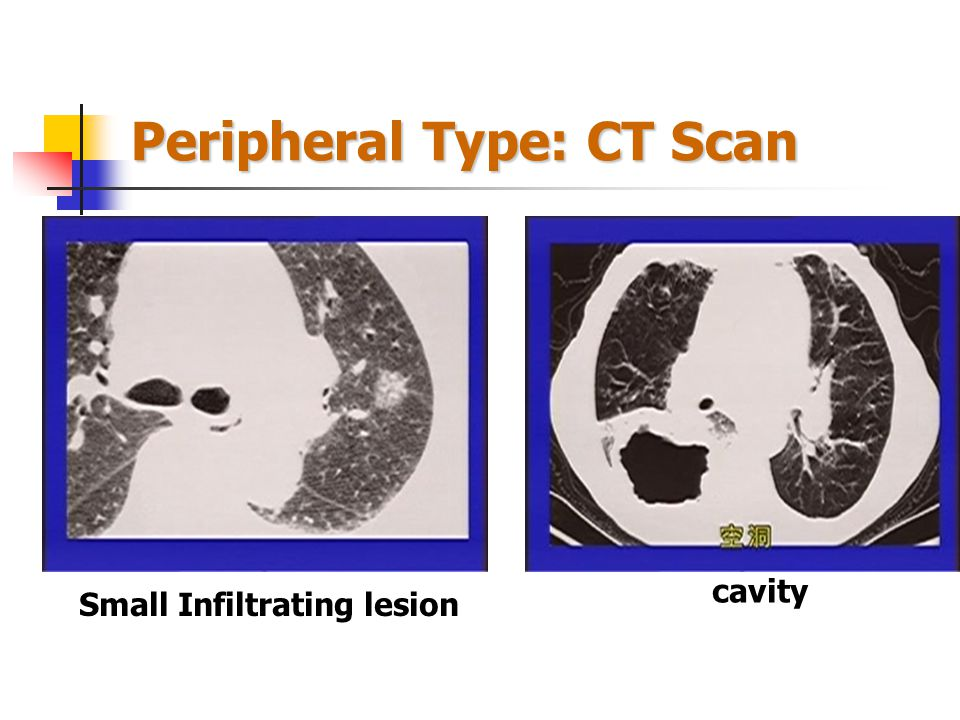 Peripheral Type: CT Scan Pleural Indrawn Sign