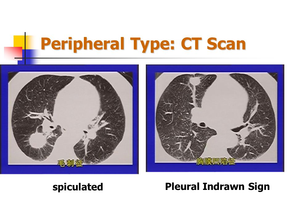 Peripheral Type: CT Scan air bronchiologram lobulated