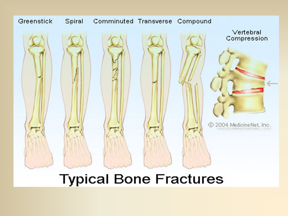 Open Compound Fractures An Open Fracture Can Be Defined As A