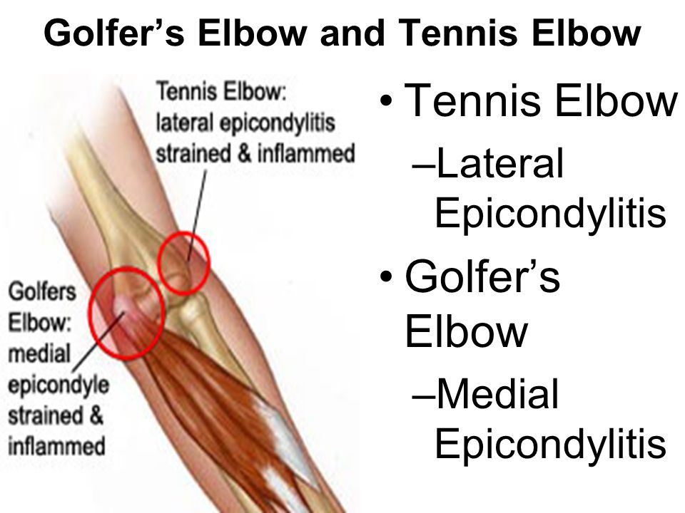 Elbow Anatomy. Bones of the Elbow Humerus –Medial and Lateral ...