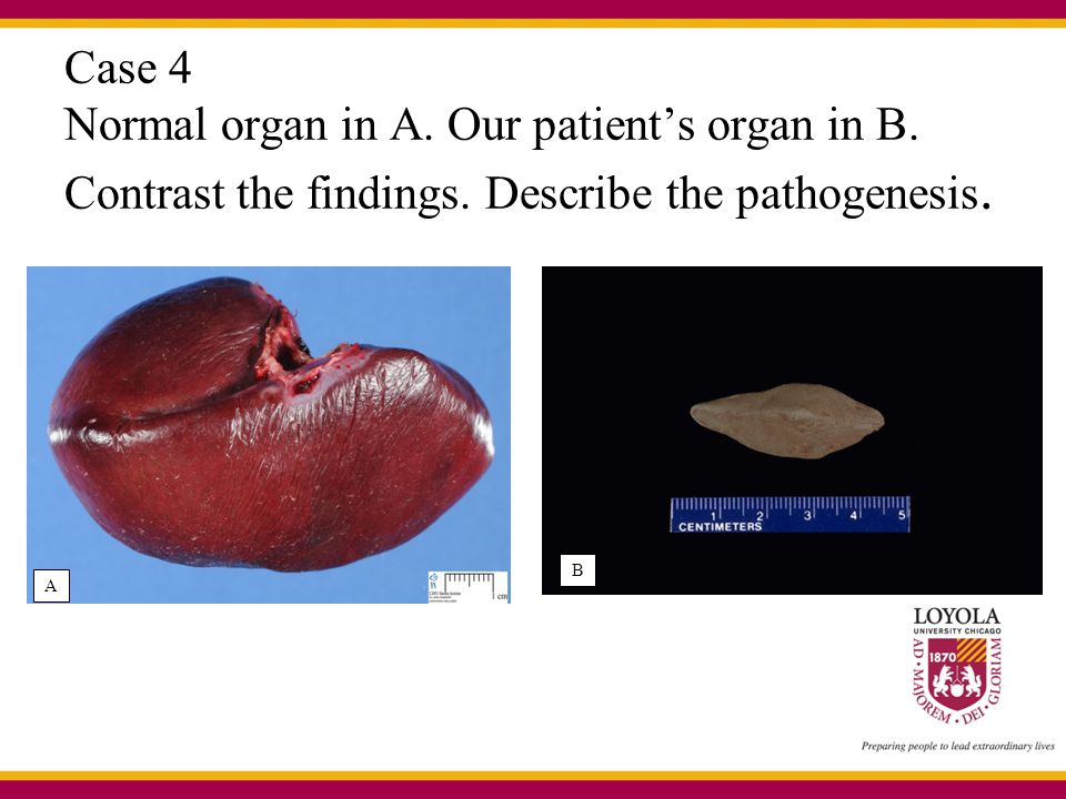 Case 4 Normal organ in A. Our patient's organ in B.